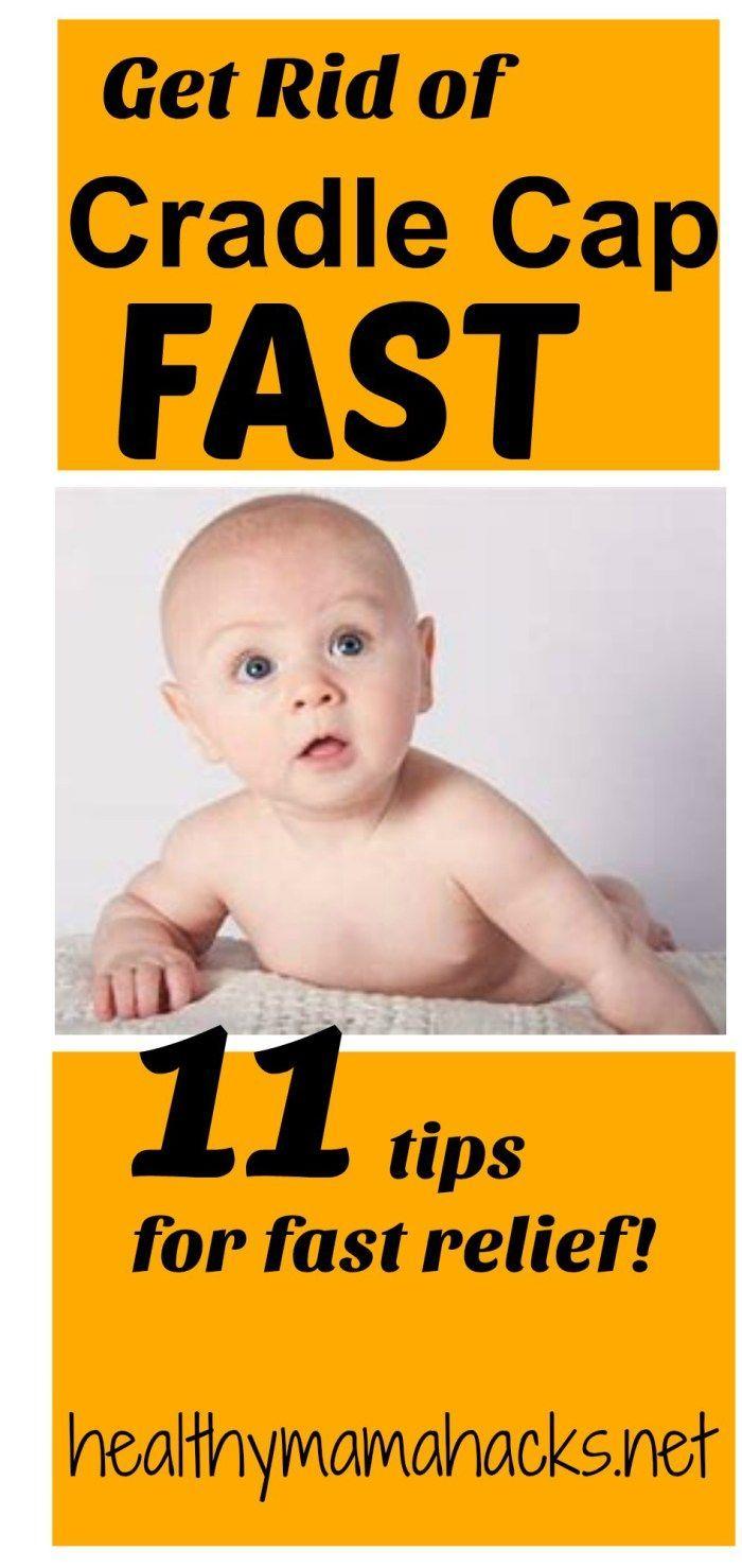 11 Natural Remedies For Fast Relief Of Cradle Cap Cradle Cap Remedies Cradle Cap Remedies Baby Baby Cradle Cap