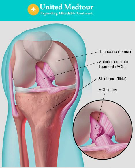 Knee ligament injuries, sprains or tears are a common form of sports injury. United medtour offers an effective treatment for anterior cruciate ligament injury.