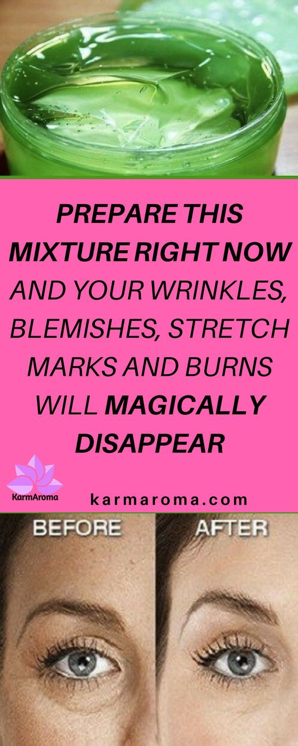 Prepare This Mixture Right Now And Your Wrinkles, Blemishes, Stretch Marks And Burns Will Magically Disappear