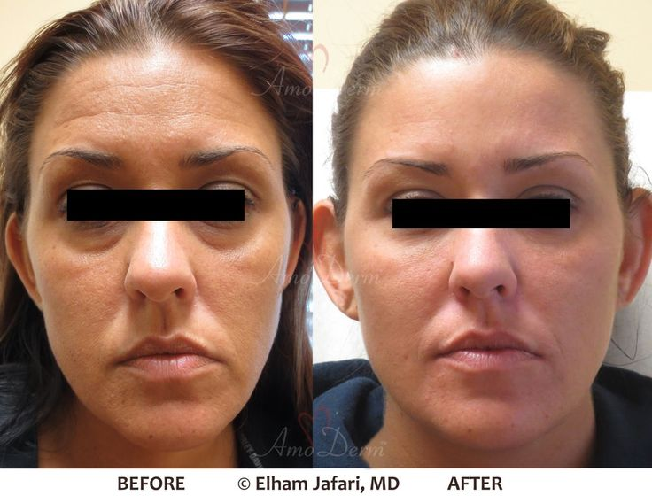 Liquid Facelift with combination of Botox and fillers injected in the temples, under the eyes, cheeks and forehead  #Botox #LiquidFacelift