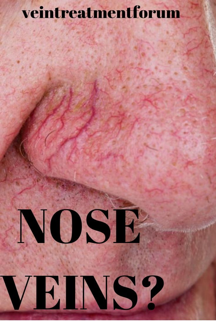 Nose veins can be annoying and hard to deal with learn