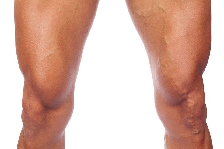 Varicose Veins is slowly progressing diseases and it should be treated early because it can lead patients to heavy pain and in worse condition. It happens when veins get crushed and started swelling inside legs. get consulted with your doctor for better advice.