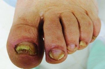 Проявление микоза ногтей рук или ног - причины возникновения, симптомы, диагностика и лечение