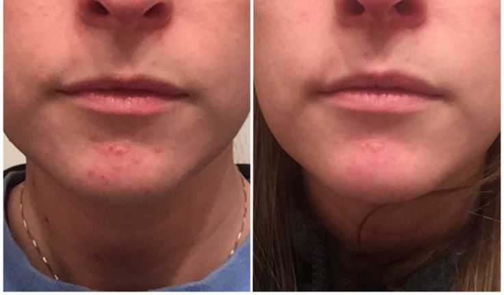 Perioral Dermatitis is a skin rash that can be red, itchy, flaky on your chin, cheeks, or eyes. It typically effects young, white women and can be hard to clear up. If you would like to see picture…