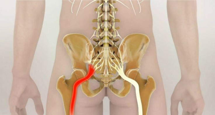 Как разблокировать седалищный нерв: 2 простых способа снять боль.   Новости   Всеукраинская ассоциация пенсионеров