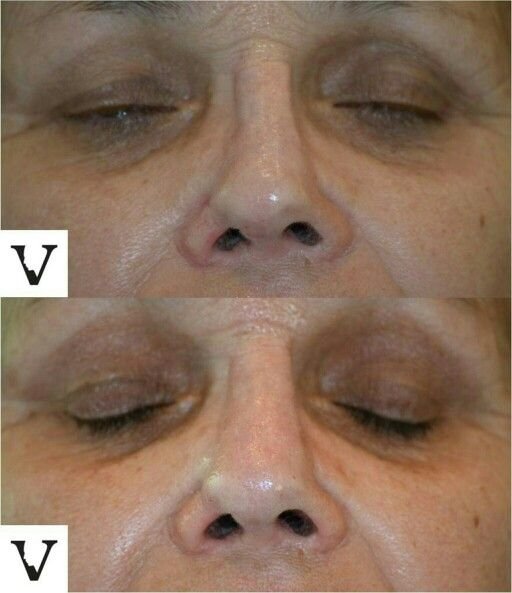 The law of paired cases yet again, another non-surgical rhinoplasty for correction of asymmetry after surgery. #rhinoplasty #nosejob #alternative #injection #expert #newton #asymmetry #correction #reconstruction #hiv #lips #eyes #beauty #taste #youth #young #proportion #selfesteem #juvederm #belotero #merz #galderma #allergan #botox #sculptra #chin #augmentation #jaw #reduction #face #slimming #visagesculpture #mashabanar