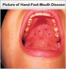 Picture of lesions in the mouth, a common characteristic of hand, foot and mouth disease