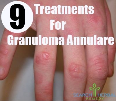 9 Treatments For Granuloma Annulare