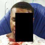 Homem tem o rosto desfigurado por celular ligado na tomada! Ser??