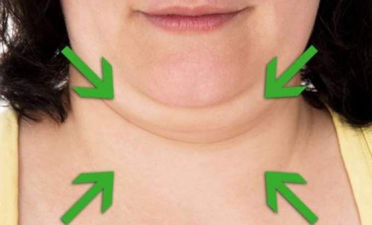 Descubra como reduzir ou eliminar a gordura da papada. Conheça os fatores que causam o queixo duplo e saiba como evita-los, nem tudo é gordura, veja!
