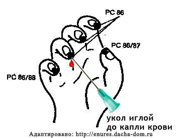 инсульт неотложная помощь pc86 ши сюань