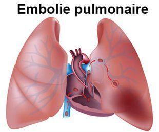 EMBOLIE PULMONAIRE - Définition, Traitement, Symptômes, Causes. Informations, Tabac, Héparine, Origine, Post Partum, Médicaments - FORUM