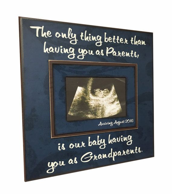 PREGNANCY REVEAL IDEA with arrival time Sonogram by MemoryScapes