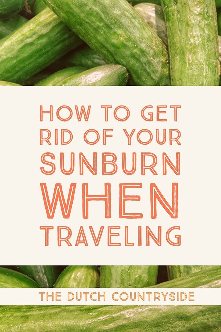 How to get rid of your sunburn while traveling?