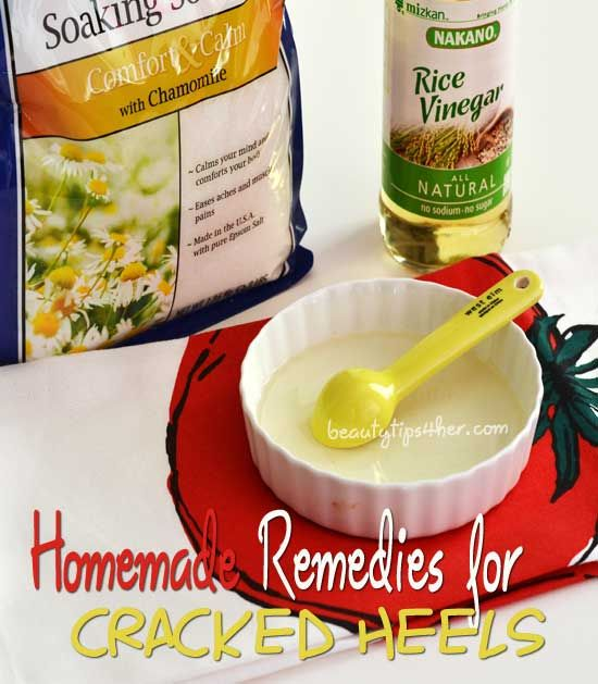 Homemade Remedies for Dry Feet and Cracked Heels - Find the Link Between Vinegar and Soft Skin.. works wonder for me.. #cracked_heels, #home_remedies_dry_heels
