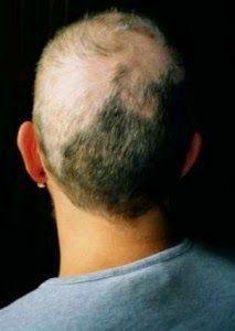 #argan #arganrain #alopeciaareata #alopeciatreatmentformen #alopeciaareatanaturaltreatment #alopeciatreatment #alopeciacure #alopeciaareatatreatment #arganrainproducts #arganrainereview