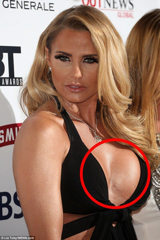 Cute Pink Nation Wallpaper Jordan S Scars From 11 Ops Show Breast Implants Are Self