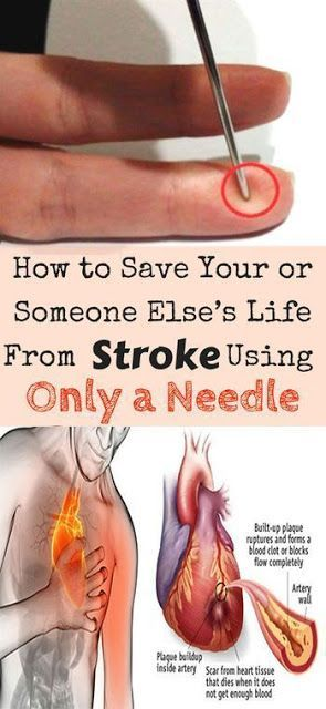 HERE'S HOW TO SAVE YOUR OR SOMEONE ELSE'S LIFE FROM STROKE USING ONLY A NEEDLE!