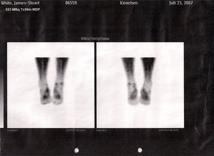 17 Best images about Osteomyelitis on Pinterest | Difficult to cure, Bone bone and Bone fracture