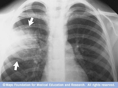 Interstitial pneumonia (atypical)-occurs in areas between alveoli-routinely caused by viruses or uncommon bacteria; nosocromial pneumonia-develops more than 48 hours after hospitalization; community-acquired pneumonia-acquired outside the hospital;