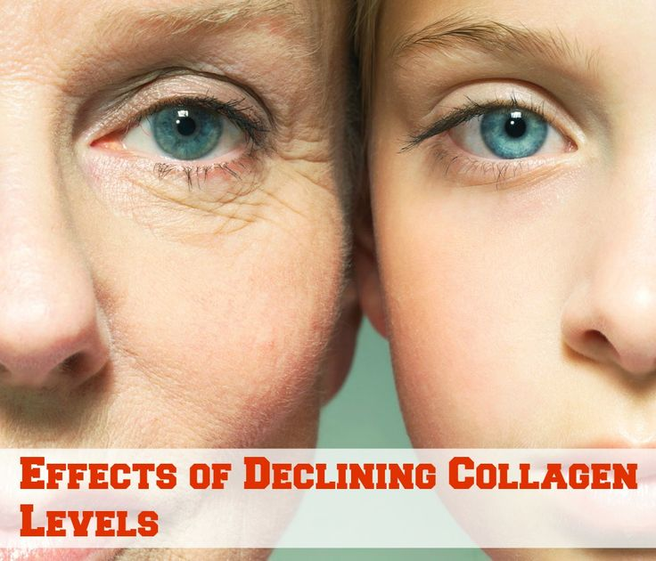 Effects of Declining Collagen Levels #collagen #beauty #skin #care