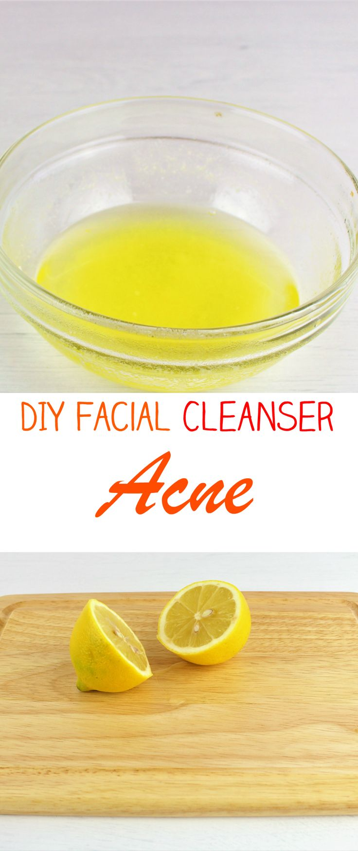 DIY Facial Cleanser to Get Rid of Acne at Home! (face cleanser, best face cleanser, homemade face cleanser, gentle face cleanser, natural face cleansers, organic face cleanser, best face cleansers, DIY face cleanser, face cleanser for oily skin, face clea