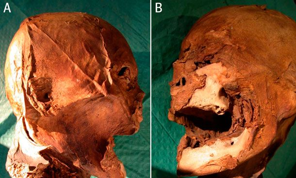 After death and desecration:  The head of King Henry IV of France, found in the garage of a French pensioner in 2010.  You can actually see where his ear was pierced too.  Born in 1553, died 1610 when he was assassinated by a Catholic fanatic.  Who knew that death to religious fanatics could be hereditary across cousins?  The head has finally been proved by genetic testing to be that of Good King Henry's.