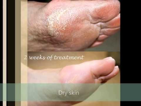 Skincerity Before and After. It works! - YouTube
