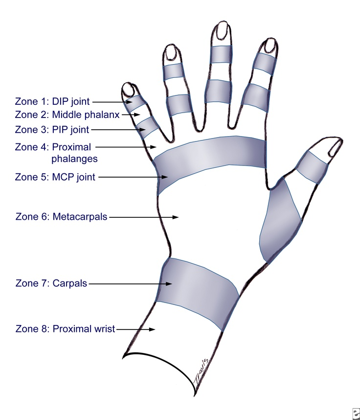 26 best OT Ortho images on Pinterest | Hand therapy, Occupational ...