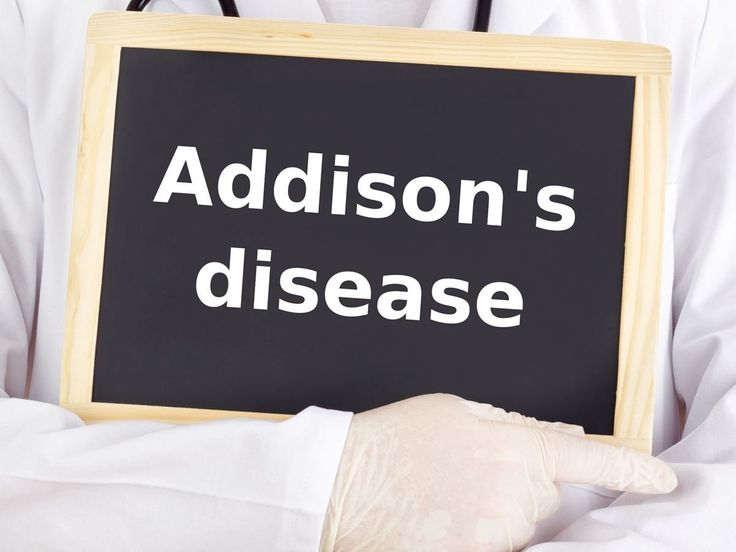 Some of the home remedies for Addison's Disease include the use of ginger, licorice, ginseng, green tea, turmeric, ashwaghanda plant, reishi mushrooms.
