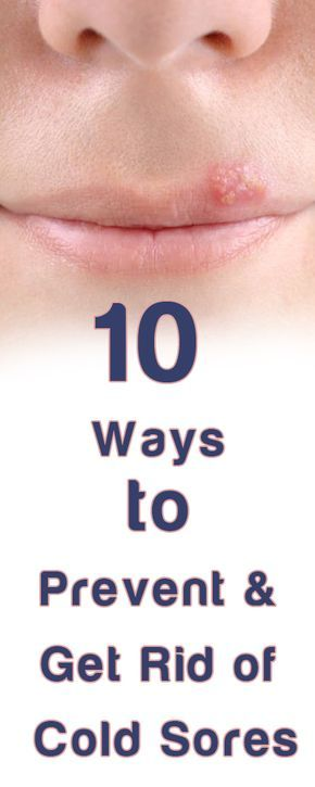 How to Get Rid of Cold Sores http://testedhomeremedies.net/how-to-get-rid-of-cold-sores.html