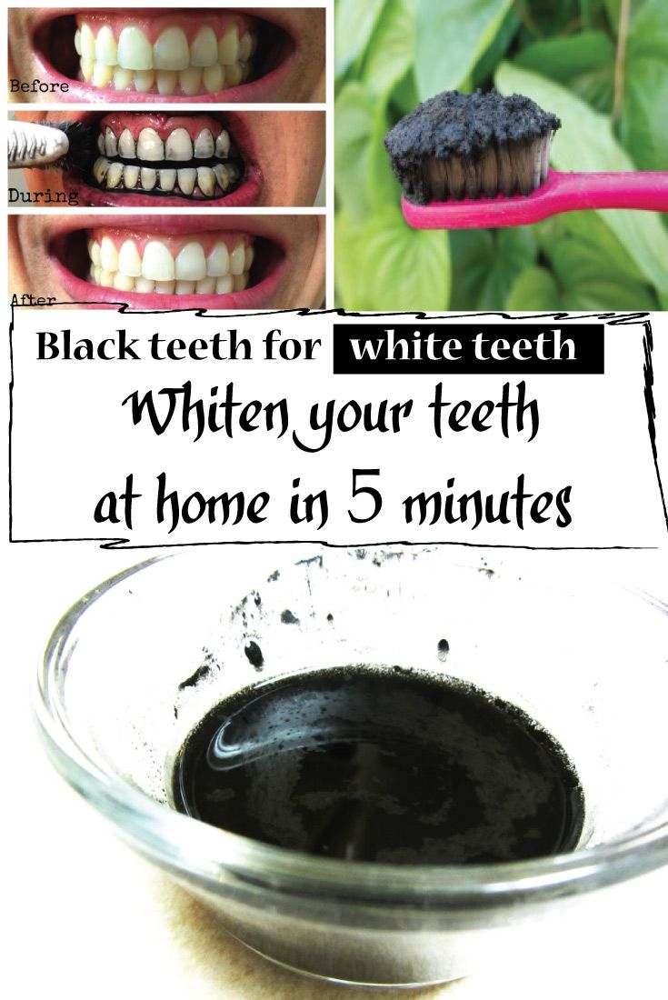 White Teeth? Whiten Your Teeth at Home in 5 Minutes using Charcoal