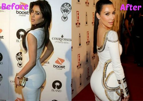 Kim Kardashian Before She Was Famous | Make Sure You Also See Other Celebrities Plastic Surgery Below