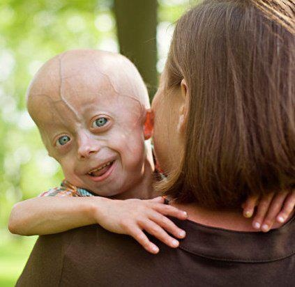 essays on progeria syndrome Progeria progeria and buy experiences top medications vitamins progeria and buy about progeria 2,586 discussions progeria (also known as hutchinson-gilford progeria syndrome, hutchinson-gilford syndrome, and 'progeria syndrome  progeria essay buy essay.