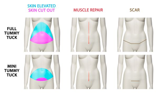 "A very brief summary of the differences between a full or standard abdominoplasty or ""tummy tuck"" and a mini-abdominoplasty."