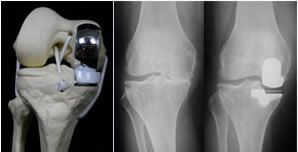 Biomat's Oxford Partial Knee Replacement