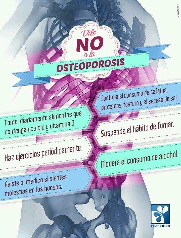 Prevencion de la osteoporosis
