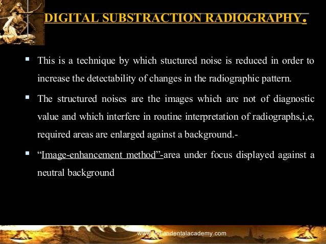 signal to noise ratio teeth example - Google Search
