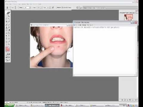 como eliminar barros y espinillas  en photoshop tutorial - http://solucionparaelacne.org/blog/como-eliminar-barros-y-espinillas-en-photoshop-tutorial/
