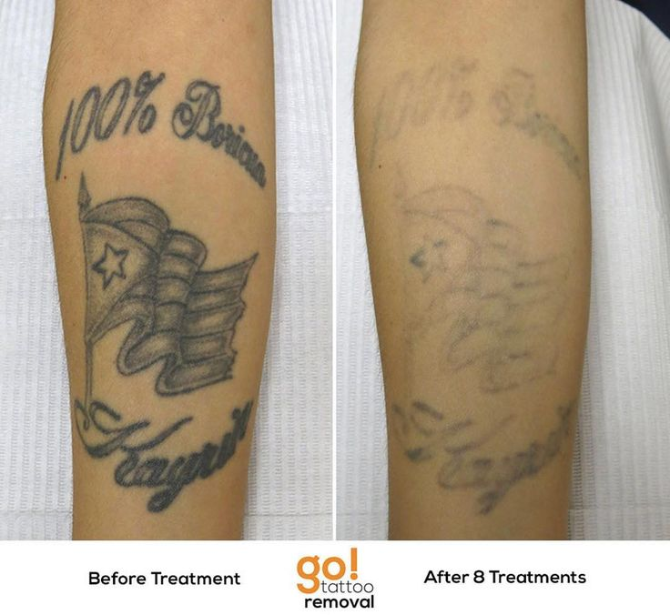825 best tattoo removal in progress images on pinterest for Qualifications for tattoo removal