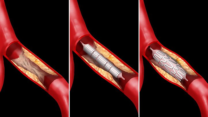 Angioplasty is a procedure often used to treat unstable angina or certain types of heart attack. Learn how angioplasty and stenting clears blockages in the heart.