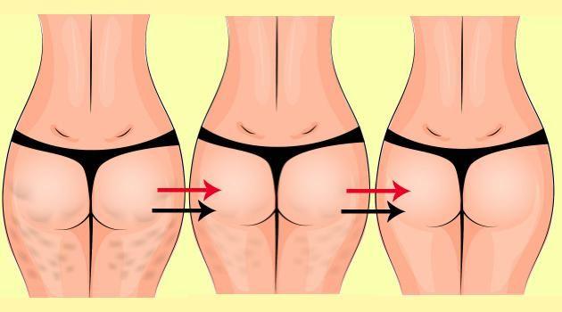5 melhores exercícios de musculação para acabar com a celulite: níveis básico e avançado