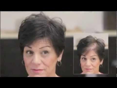 Recupera tu Confianza! - Capillus, tapa la alopecia y calvicie en mujeres
