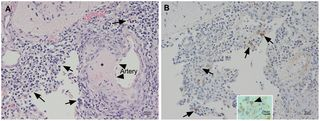 PLOS ONE: The Three Subtypes of Tick-Borne Encephalitis Virus Induce Encephalitis in a Natural Host, the Bank Vole (Myodes glareolus)