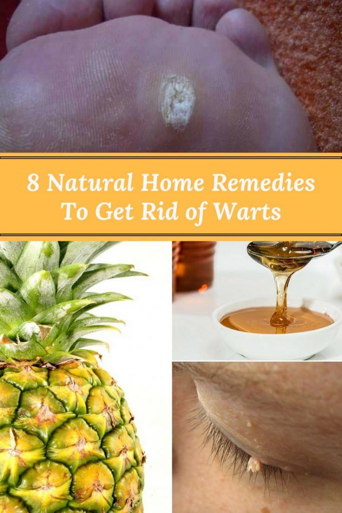 8 Natural Home Remedies To Get Rid of Warts http://www.wartalooza.com/treatments/salicylic-acid-treatment-for-warts
