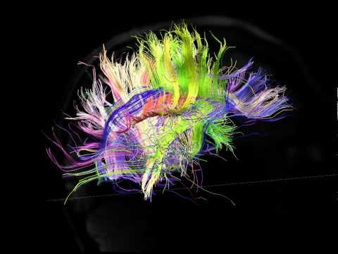 """Ever wonder what is it that makes you, you? Depending on whom you ask, there are a lot of different answers, but these days some of the world's top neuroscientists might say: """"You are your connectome."""""""