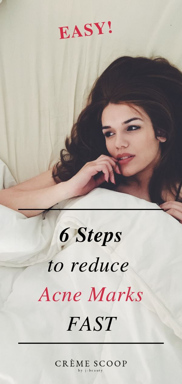 How To Reduce Acne Marks Fast 6 Simple Steps Acne Marks Reduces Acne Acne