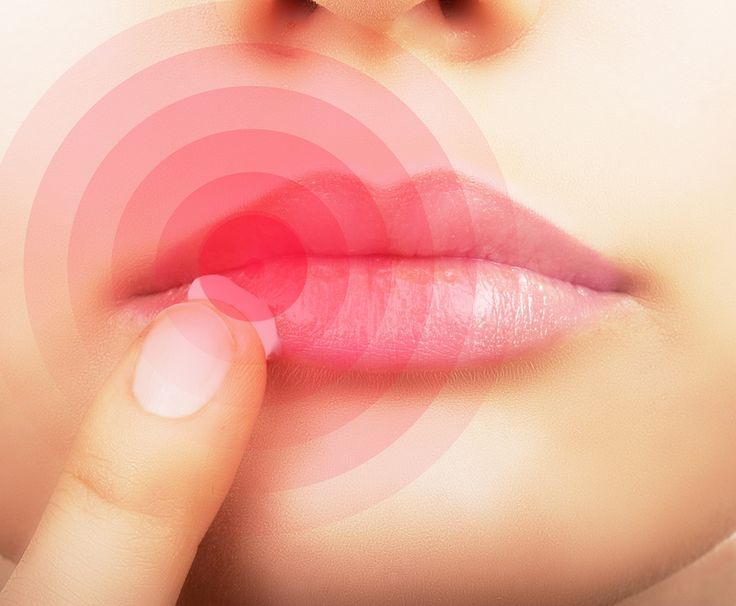 Herpes can cause small, fluid-filled blisters on the skin and mucous membranes. Try these Herpes Natural Cure treatments for relief and healing!
