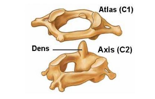 A diagram depicting the Atlas and Axis vertebra of the spine ...