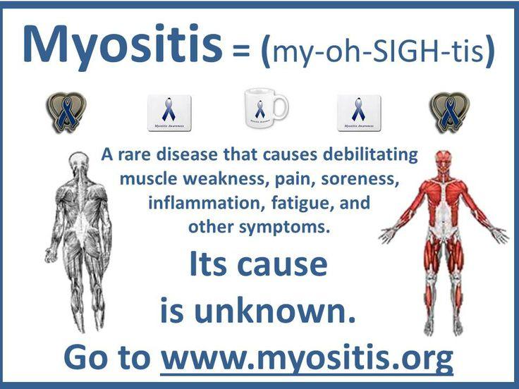 Diagnosing Myositis - Myositis Support and Understanding